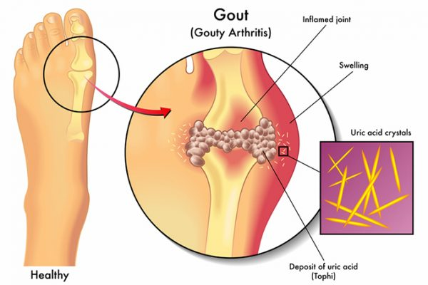 Gout, Gout, Full Body Massage Service